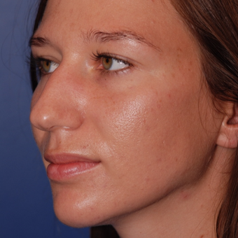 25-34 year old woman treated with Rhinoplasty before 3624004