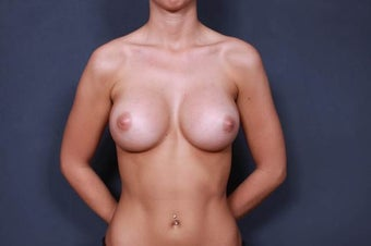 Breast Augmentation with round implants after 1030259