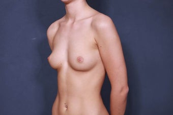 Breast Augmentation with round implants 1030259
