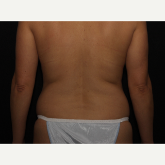 44 year old woman treated with Liposuction before 3000523