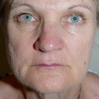 55-64 year old woman treated with Facelift before 3095776