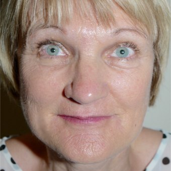 55-64 year old woman treated with Facelift after 3095776