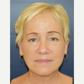 55-64 year old woman treated with MACS Facelift after 3504007