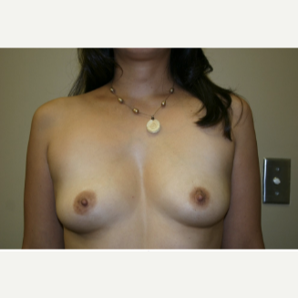 5'3 and 130lb. We ended up using smooth, round, moderate plus, Mentor Implants before 3129547