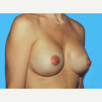 Breast Augmentation after 3732611
