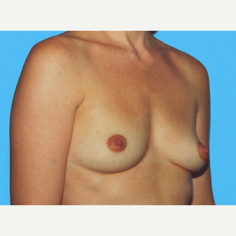 Breast Augmentation before 3732611