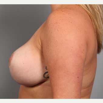 35-44 year old woman treated with Breast Lift with Implants after 3588538