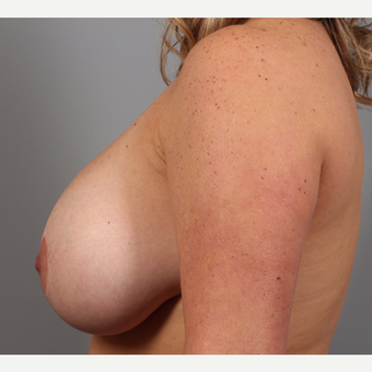 35-44 year old woman treated with Breast Lift with Implants before 3588538