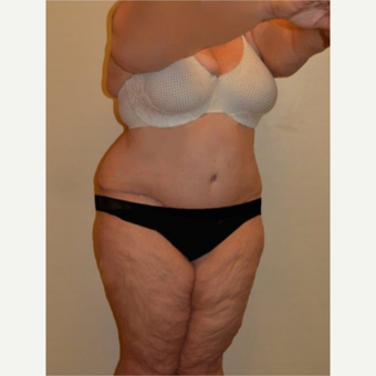 45-54 year old woman treated with Tummy Tuck after 3658170