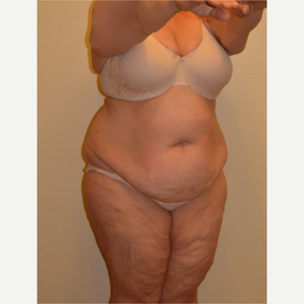 45-54 year old woman treated with Tummy Tuck before 3658170