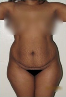 25-34 year old woman treated with Tummy Tuck before 2078538