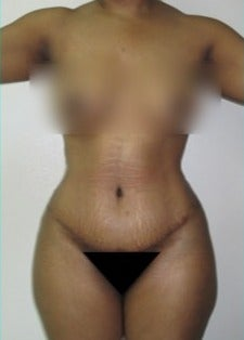 25-34 year old woman treated with Tummy Tuck after 2078538