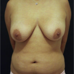 25-34 year old woman treated with Breast Lift before 3742348