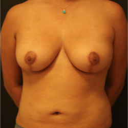 25-34 year old woman treated with Breast Lift after 3742348