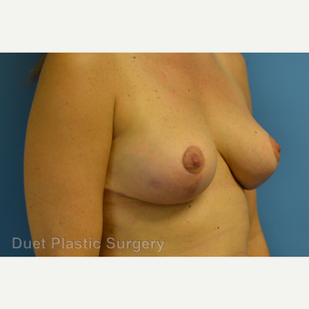 35-44 year old woman treated with Breast Reduction after 3350314