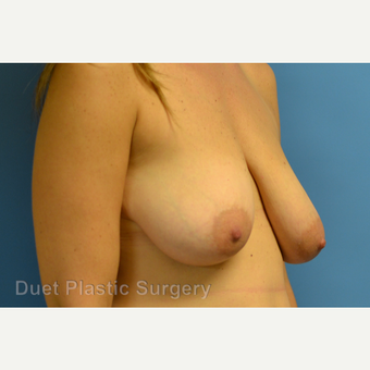 35-44 year old woman treated with Breast Reduction before 3350314