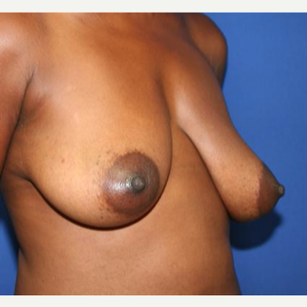 35-44 year old woman treated with Breast Lift before 3033075