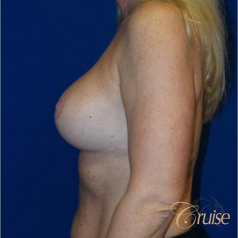 45  year old woman treated with an anchor Breast Lift after 3641067