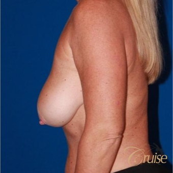 45  year old woman treated with an anchor Breast Lift before 3641067