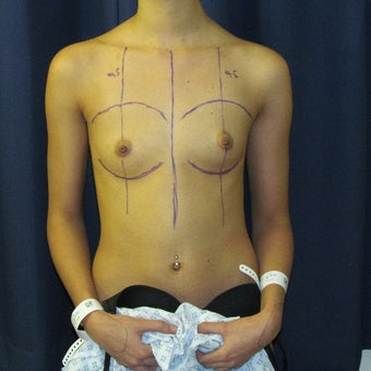18-24 year old woman treated with Breast Augmentation before 2265151