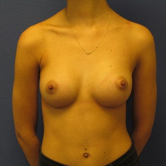 18-24 year old woman treated with Breast Augmentation after 2265151