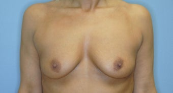 46 year old female - Saline before 1495809