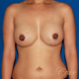 32 year old mom of two had breast augmentation to improve fullness after 3522578