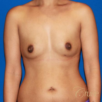 32 year old mom of two had breast augmentation to improve fullness before 3522578