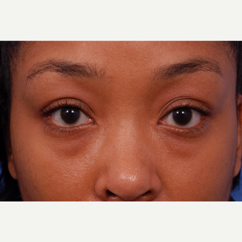 25-34 year old woman treated with Restylane before 3175240