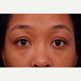 25-34 year old woman treated with Restylane after 3175240