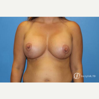 35-44 year old woman treated with Breast Lift with Implants after 3448245