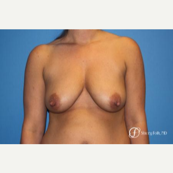 35-44 year old woman treated with Breast Lift with Implants before 3448245