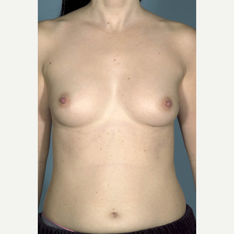 35-44 year old woman treated with Breast Implants before 3732004