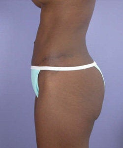 Tummy Tuck after 280071