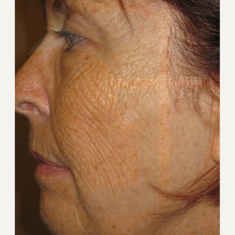 65-74 year old woman treated with Laser Treatment before 2759318
