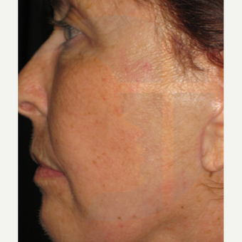 65-74 year old woman treated with Laser Treatment after 2759318