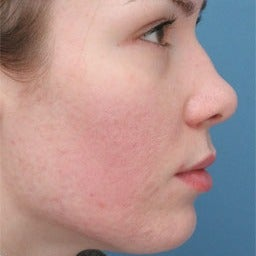 Acne Scars Treatment after 1677185