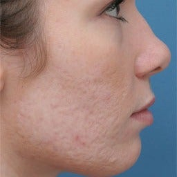 Acne Scars Treatment before 1677185