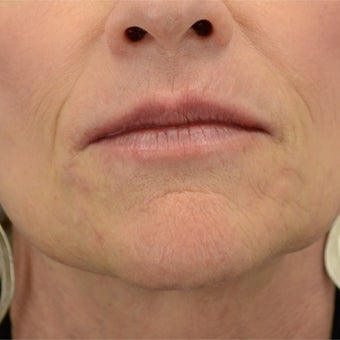 55-64 year old woman treated with Ultherapy after 1808235