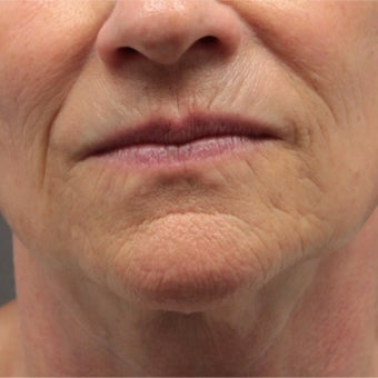 55-64 year old woman treated with Ultherapy before 1808235