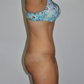 25-34 year old woman treated with Tummy Tuck 1860280