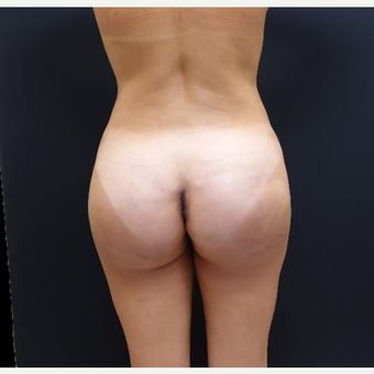 35-44 year old woman treated with 548cc Butt Implants after 3235638