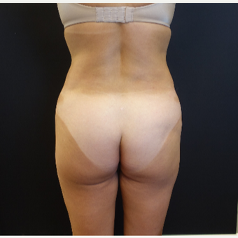 35-44 year old woman treated with 548cc Butt Implants before 3235638