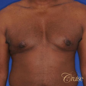 18-24 year old man treated with Male Breast Reduction after 3502215