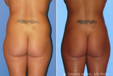 Liposuction before 217837