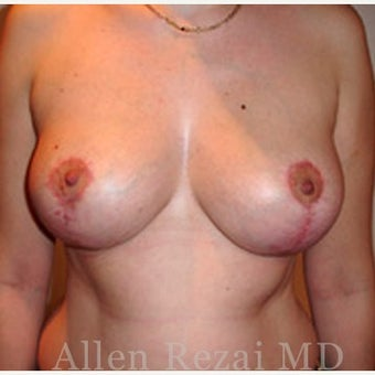 35-44 year old woman treated with Breast Lift / Breast Uplift / Mastopexy after 2280990