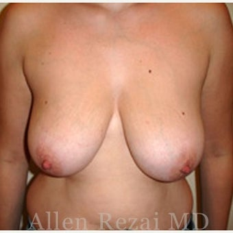 35-44 year old woman treated with Breast Lift / Breast Uplift / Mastopexy before 2280990