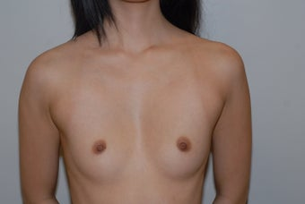 23 year old requesting augmentation with pectus excavatum chest deformity
