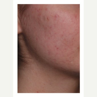 25-34 year old woman treated with Isolaz after 2242245