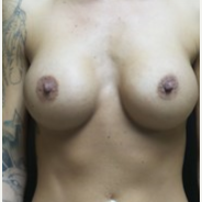 25-34 year old woman treated with Breast Augmentation after 3665305